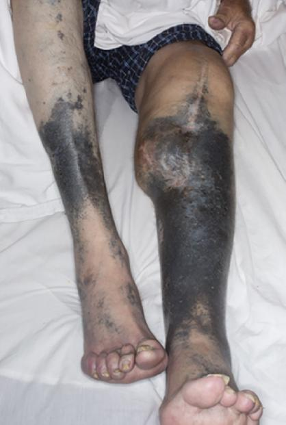 "Blue-gray skin hyperpigmentation of the lower extremities from minocycline Berberi, H. et al. ""Diffuse skin hyperpigmentation associated with chronic minocycline use in a patient with posthetic joint infection."" IDCases (2017) 7:30-31. PMC. Web. 19 Dec 2016."