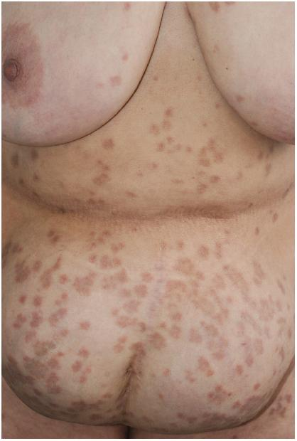 "Granuloma annulare from levetiracetam Sereflican B. et al. ""Disseminated eruptive granuloma annulare induced by levetiracetam."" Cutaneous and Ocular Toxicology (2017) 1-2. PMC. Web. 17 Jan 2017."