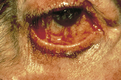 Cicatricial pemphigoid This is a chronic autoimmune subepithelial blistering disease