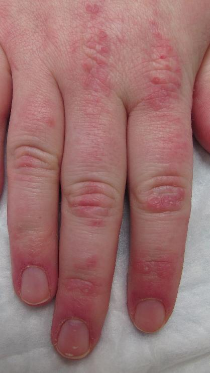 Dermatomyositis: Gottron's papules by courtesy of Joseph English, Skin and Systemic Disease, CRC Press 2014