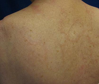 Granuloma annulare by courtesy of Joseph English, Skin and Systemic Disease, CRC Press 2014