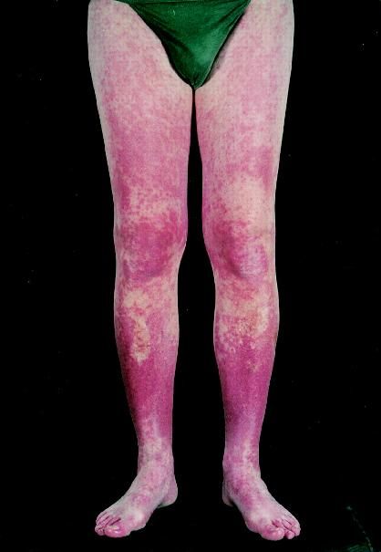 "Lymphocytic vasculitis of the lower leg from carbamazepine Kontogiannis V et al. ""Systemic vasculitis or not? That is the question."" Annals of the Rheumatic Diseases 1999; 58(10):591-593. Web 1999."