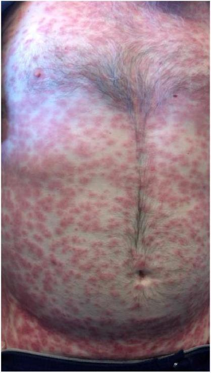 "Painless, non-pruritic edematous papules from ibrutinib Mannis, G. et al. ""Ibrutinib rash in a patient with 17p del chronic lymphocytic leukemia."" American Journal of Hematology (2015) 90(2): 179. PMC. Web. 25 Aug 2015."
