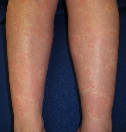 Urticaria in Sjogren's syndrome by courtesy of Joseph English, Skin and Systemic Disease, CRC Press 2014